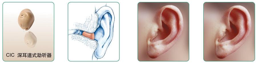 深耳道助听器